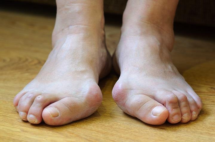 a lábujjak ízületi gyulladásainak gyógyszerei fájó ízületek húzza a lábát