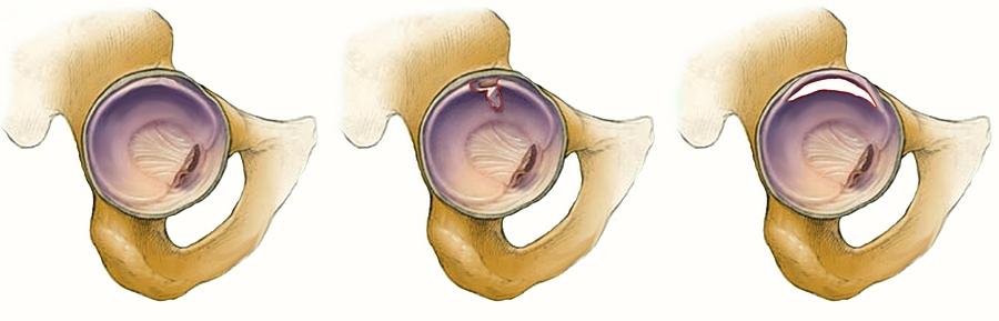 a térdízület akut artrózisa 3 fok)