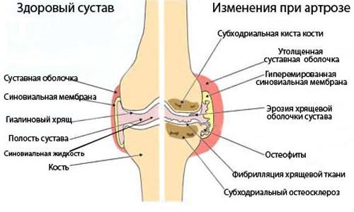 állítsa le a fájdalmat a térd artrózisával