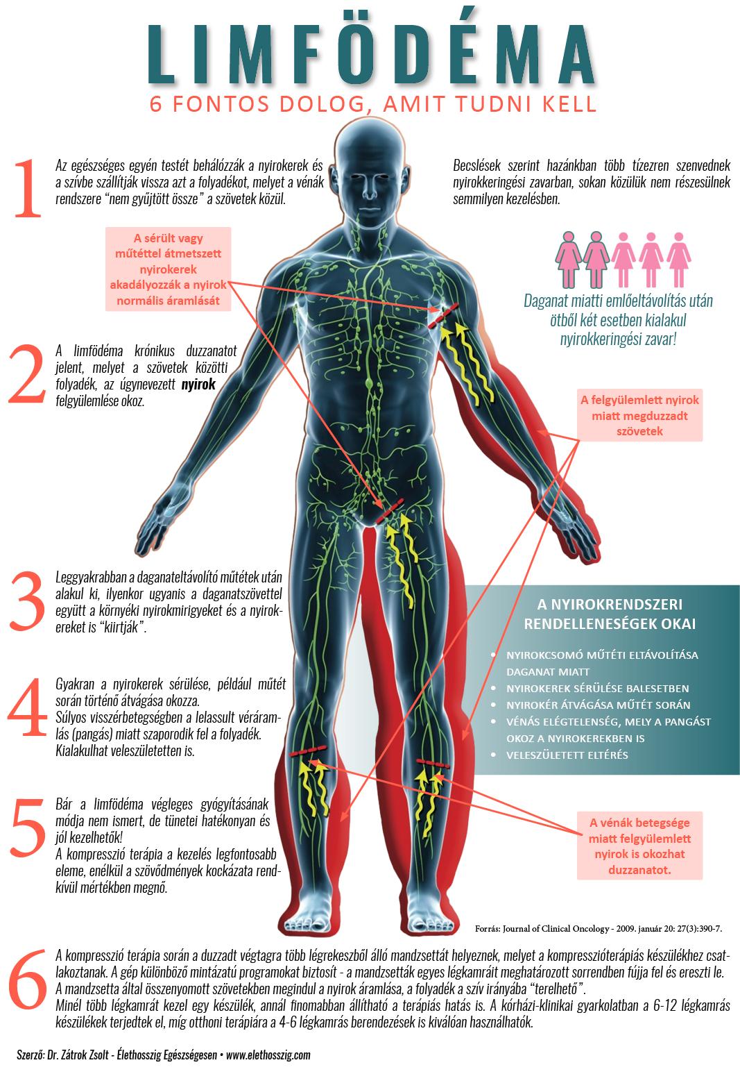 véna ízületi kezelés