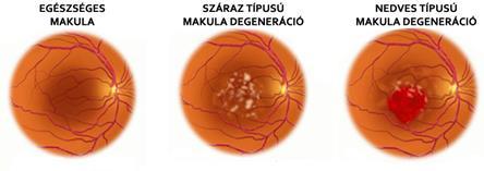 makula artrózis kezelés)