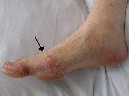 ízületi masszázs krém boka sérülések