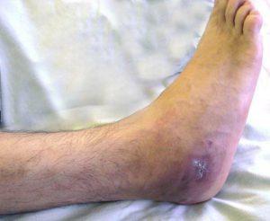 térd osteomyelitis tünetei és kezelése