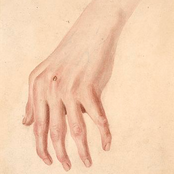 rheuma arthritis icd 10