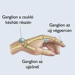 csukló artrózis és kezelése)