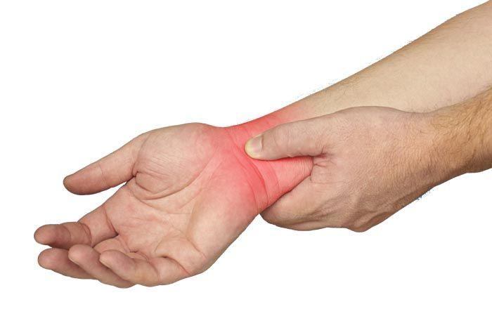 csukló-sprain kezelés)