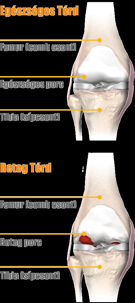 a térd artrózisa a jamaldin fájdalma
