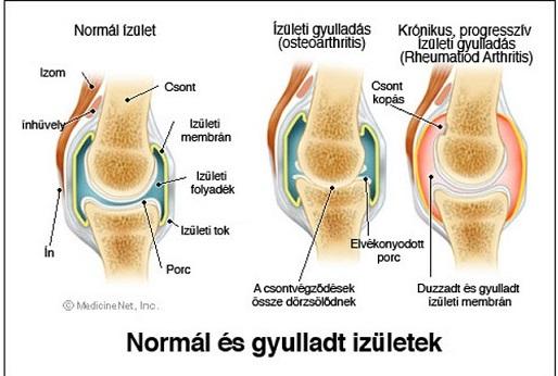 térdízületek kialakulása ízületi gyulladás esetén