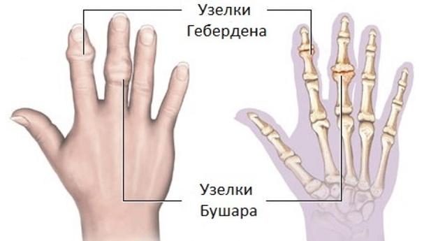 ízületi polyosteoarthrosis kórtörténet ízületi betegség kódja