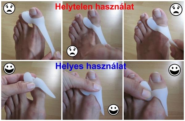 a nagy lábujjak artrózisának kezelése)