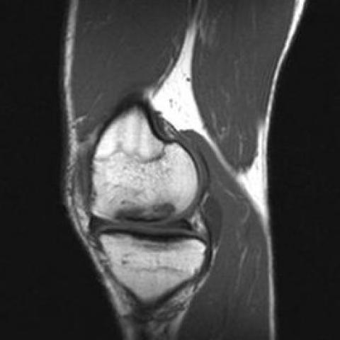 osteochondritis dissecans mri)