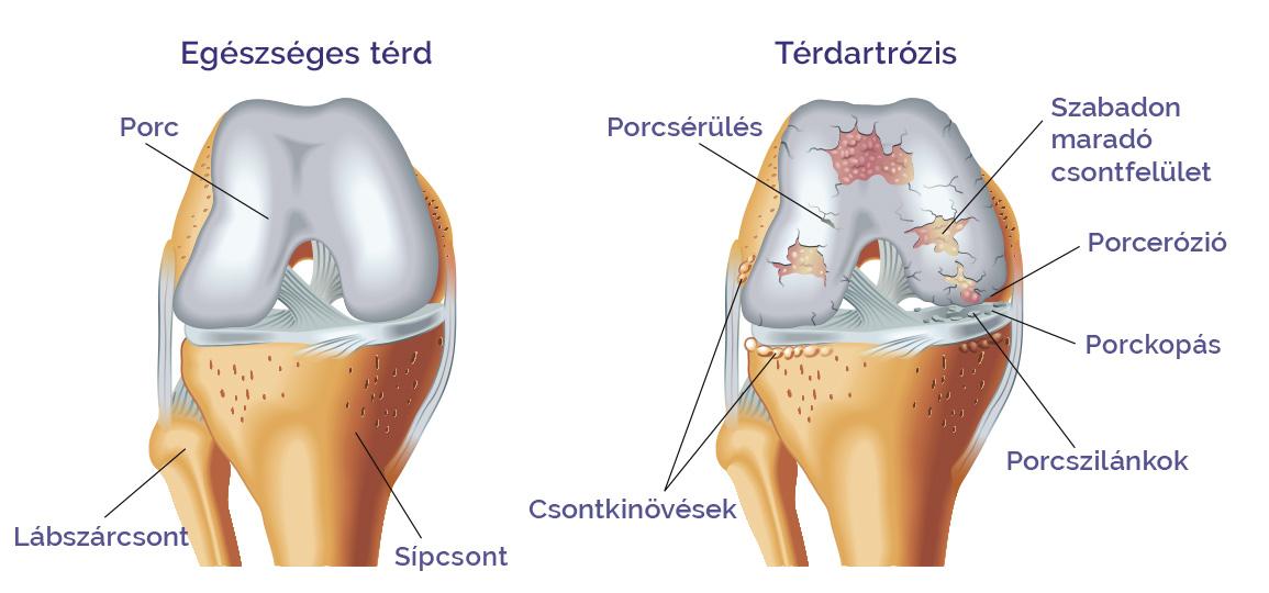 a térd diffúz artrózisa