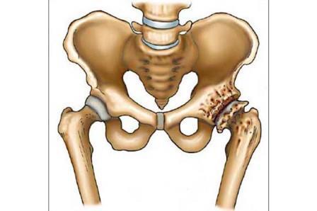 csontok és calcaneus artrosis kezelése)