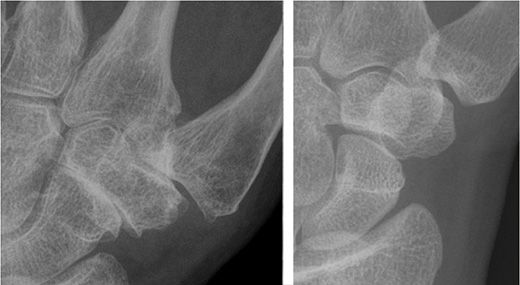 A csontritkulás (oszteoporózis) előjelei és veszélyei