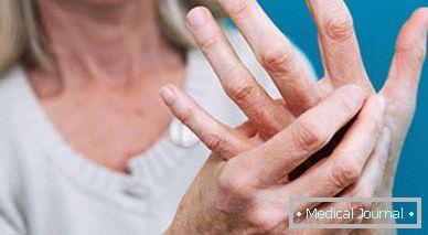 A deformáció az ujj ízületek tünetei és kezelése kezek
