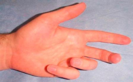 könyökfájdalom az ujjak hajlításával)