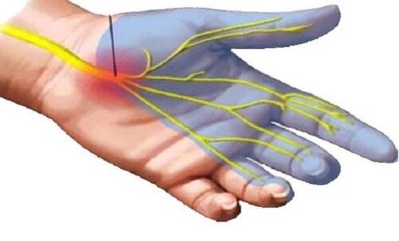 a lábízület fáj az esti órákban felejtsd el az ízületi fájdalmakat örökre