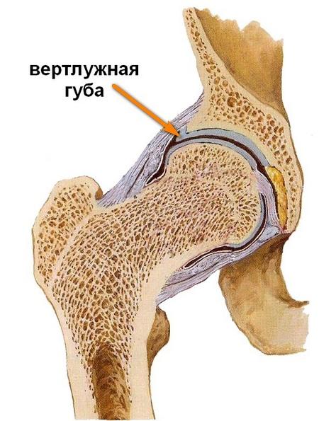 hogyan lehet gyógyítani a csípőízületek artrózisát)