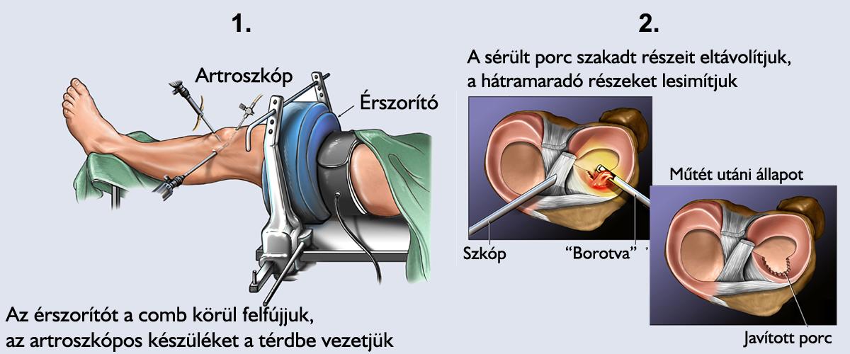 a térd meniszkusz kezelése)