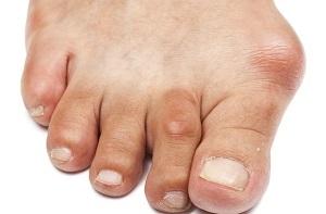 deformáló artrózis az i. fokú boka kezelésében a legjobb kenőcs az ízületek kezelésére