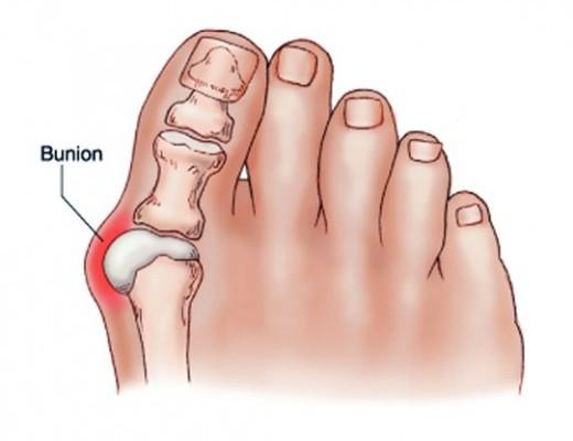 hirtelen fájdalom a nagy lábujj ízületében