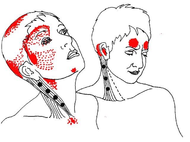 duzzanat az ízületeken vérszegénységgel ízületi gyulladást okoz ha megreped az ujjai