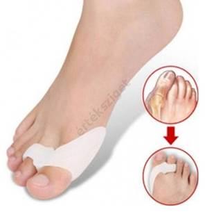 a nagy lábujj együttes kezelése