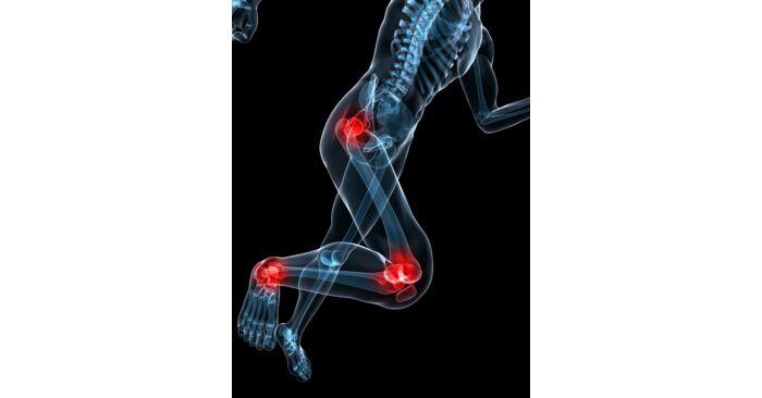 ízületi fájdalom ápolási folyamata