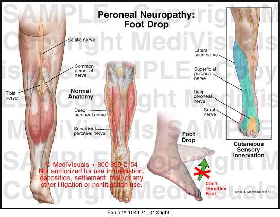 arthrosis shungitis kezelés