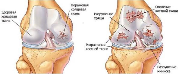 indometacin a térd artrózisában
