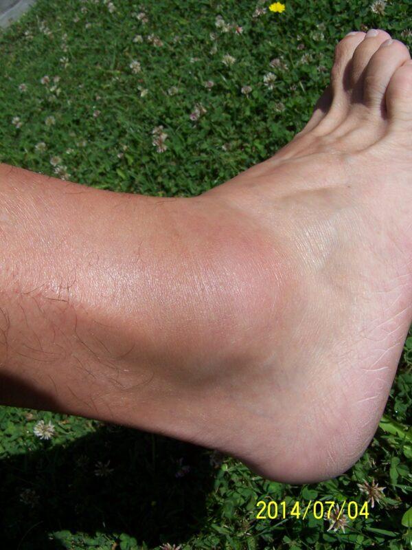 a boka és a láb károsodása
