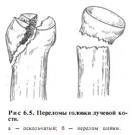 a könyökízület posztraumás artrózisának kezelése)
