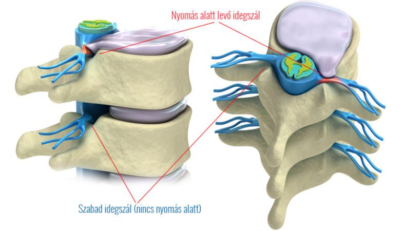 Porckorongkopás | okai |kezelése - a gerinc degenerációja
