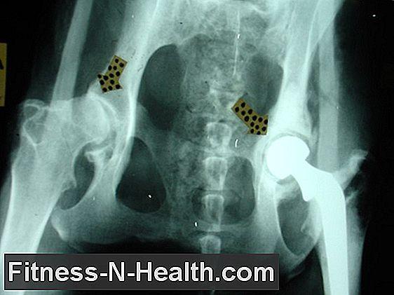 homeopátia a csípőízület artrózisának kezelésére
