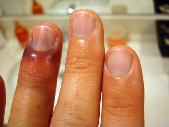 a kézízületek duzzanatát okozza
