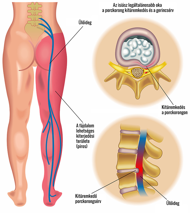 csípő diprospan kezelés ágyéki gerincsérv lelki okai