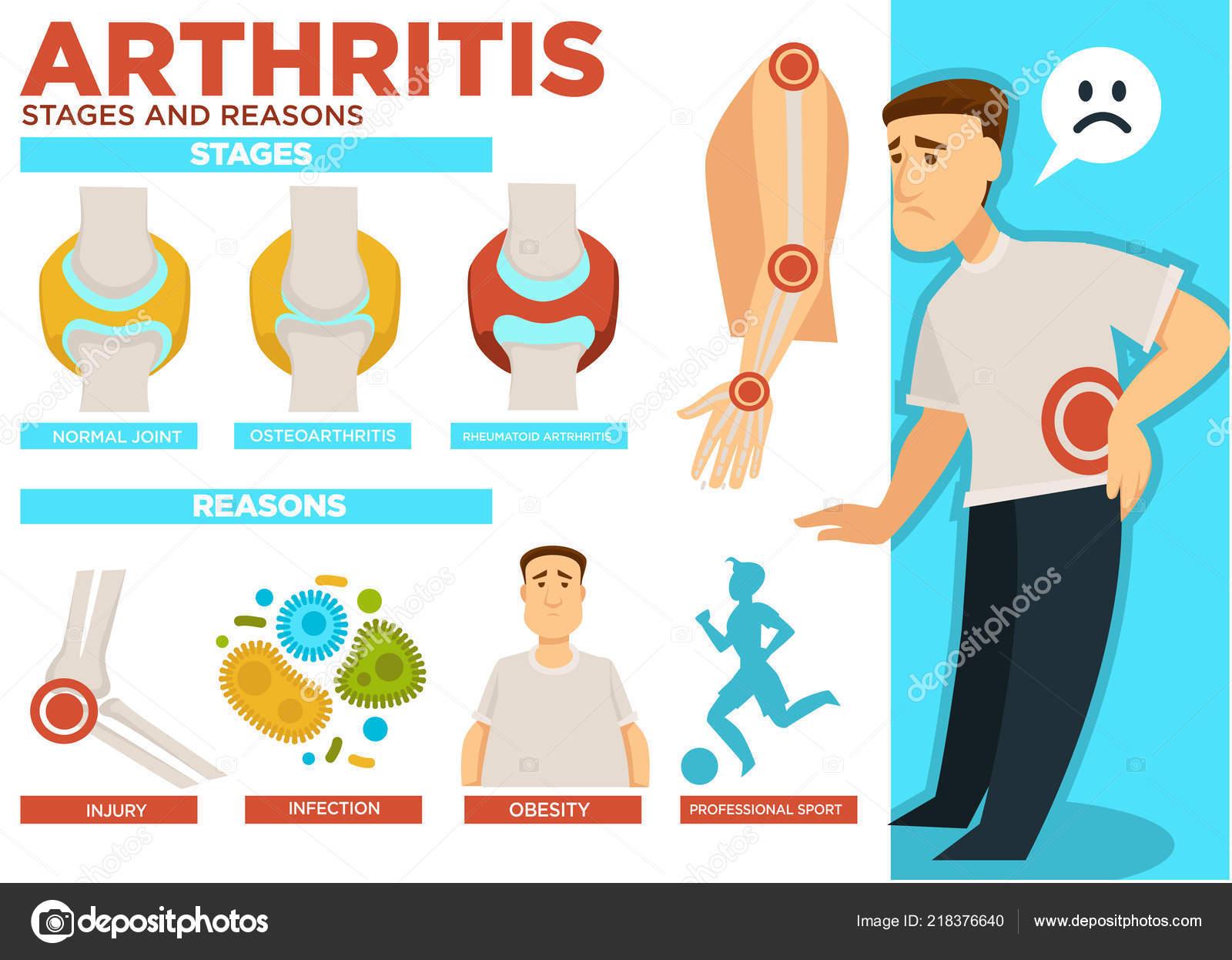 rheumatoid arthritis szakaszai)