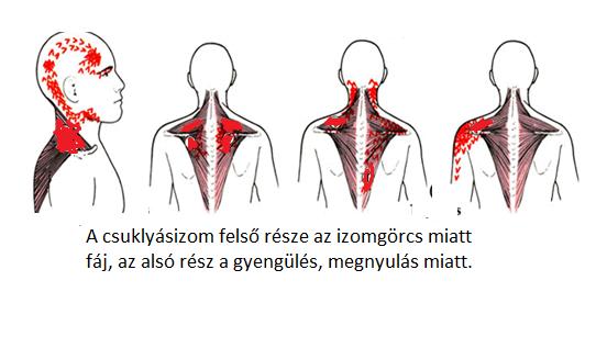 nyaki és vállfájdalom fájdalmak voltak a vállízületekben