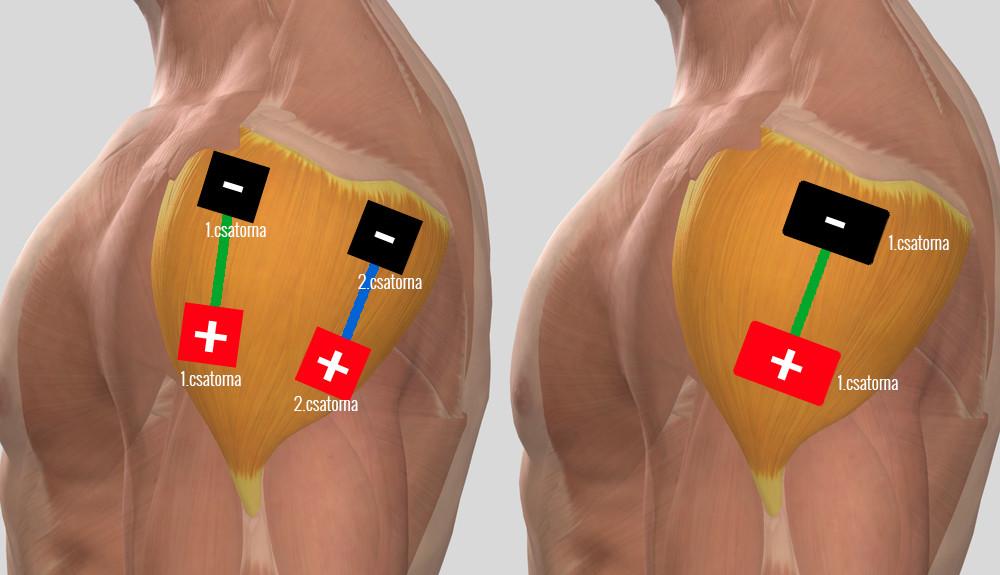 a vállízület kezelésének artrózisának diagnosztizálása)