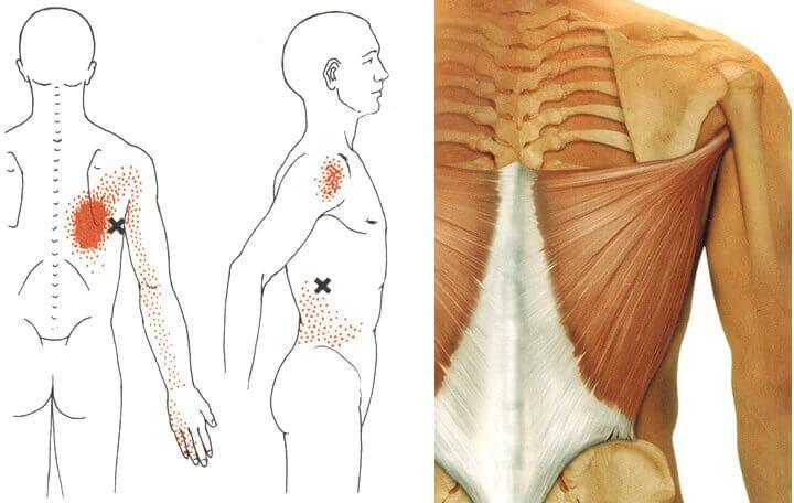 ízületi fájdalom vegetovaszkuláris dystoniával