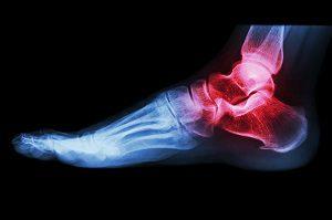 miért fáj a láb és a boka ízületei