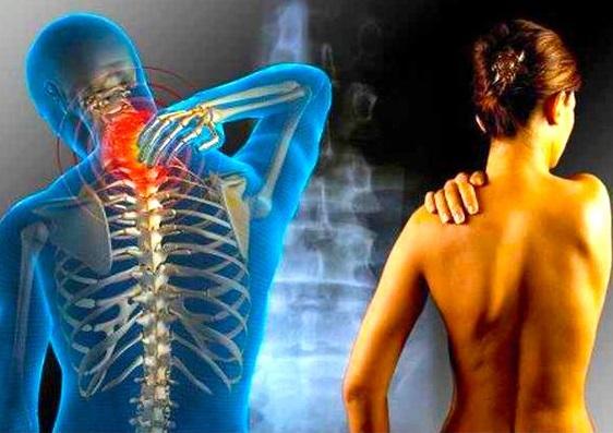 osteochondrosis neck pain