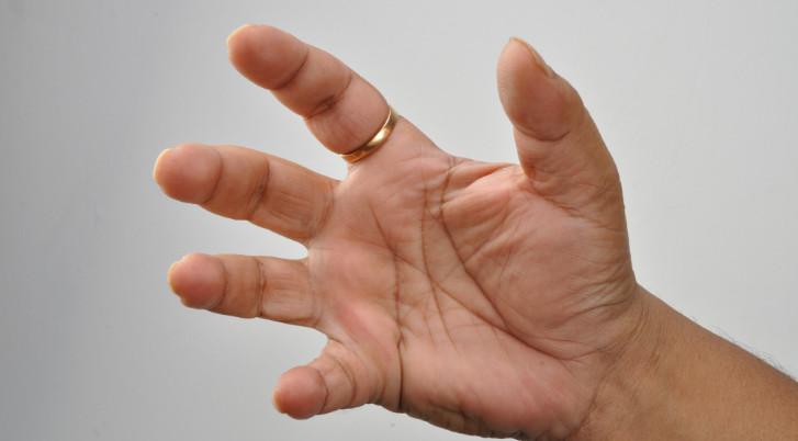 Az orvos válaszol: duzzadt, fájdalmas ujjak - fájdalomportácseszlovak.hu