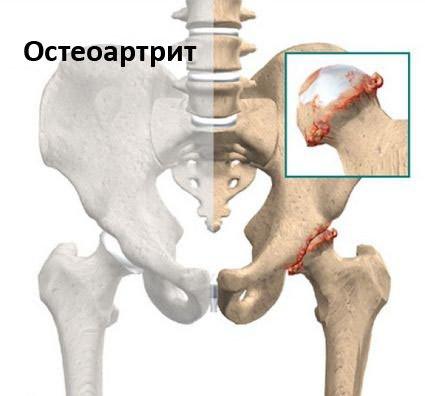 a boka ízületének 2. stádiuma artrózisa