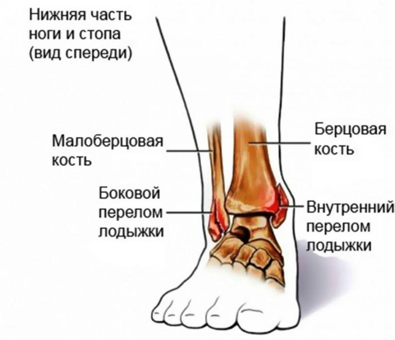 a boka ízületének zárt törése ahol kezeljük a csípőízület fájdalmait