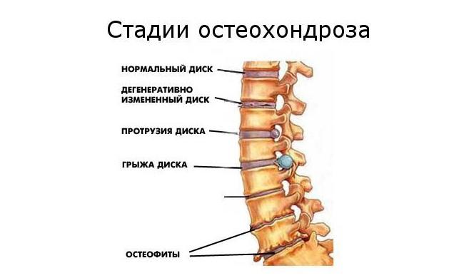 a csípőízület artrózisának kezelése tablettákkal