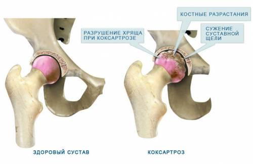 a csípőízület coxarthrosisának kezelése 1-2 fokkal)