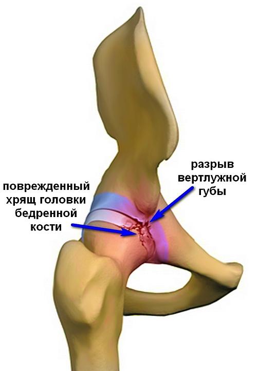 a csípőízület fájdalma nem tűnik el