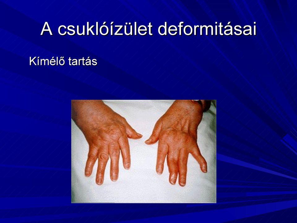 a csuklóízületek és a kézízületek fájdalmainak okai