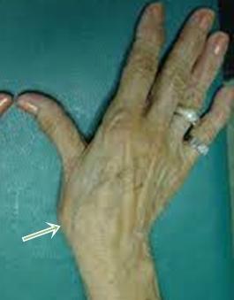 a hüvelykujj tövének artrózisának kezelése)